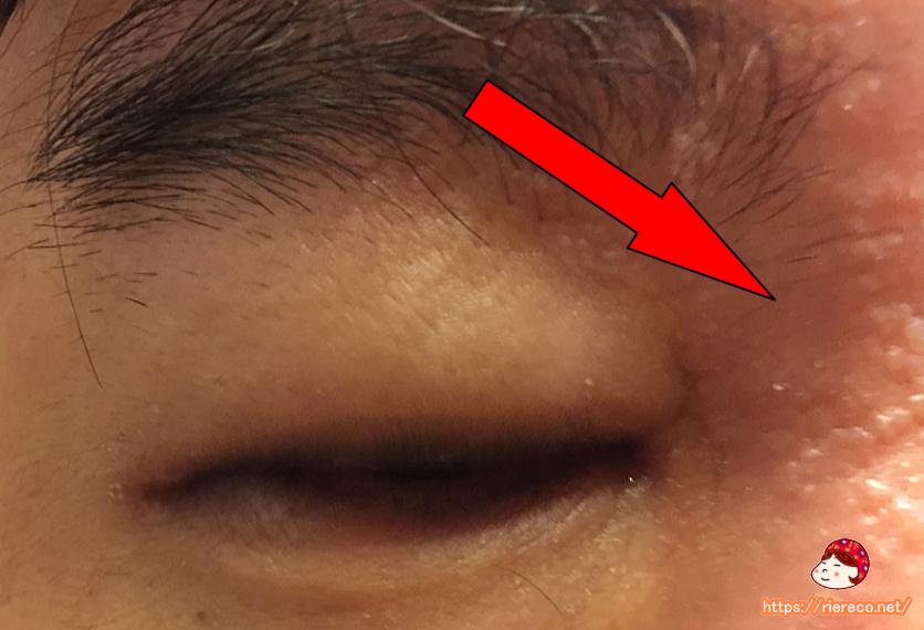 ヘルペス 目の周り 薬